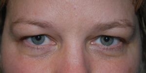 brow forehead before